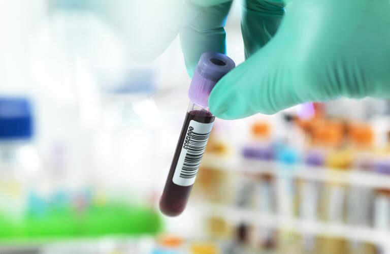 Unseen lab technician holding blood sample vial