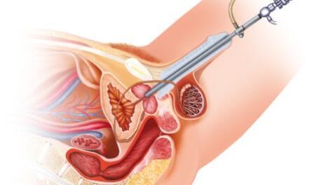 Cystoscopy - 460x261