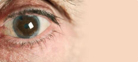 cataracts-SL