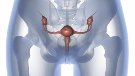 Uterine Prolapse Surgery