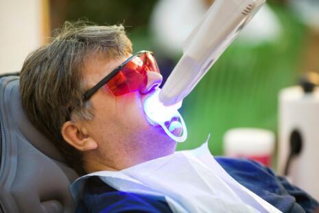 UV teeth whitening