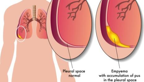 Thoracentesis (pleural tap)