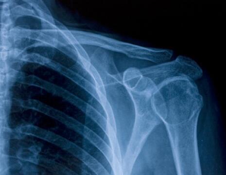 xray of shoulder