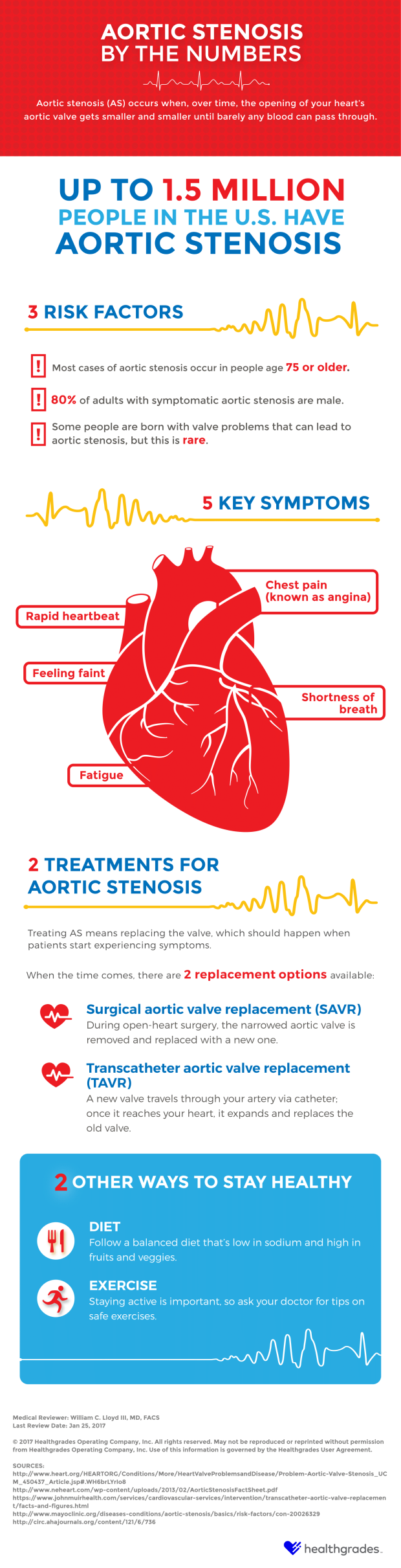 aortic stenosis infographic