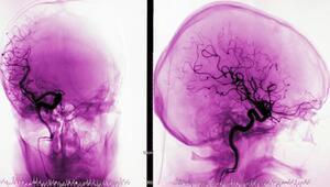 Penn Radiology, Radnor, PA