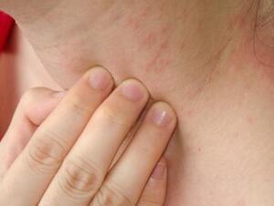 Neck Itch - Symptoms, Causes, Treatments | Healthgrades com