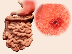 Gastric Ulcer Symptoms Causes Treatments Healthgrades Com