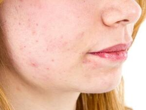 Cheek Rash | Healthgrades com