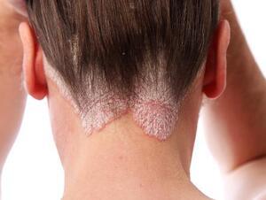 eczema: November 2018