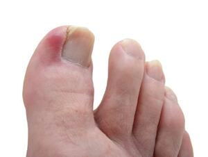 toe pain pain in toes symptoms causes treatments diagnosis