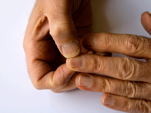 Swollen Finger - Swelling Fingers - Symptoms, Causes, Treatments