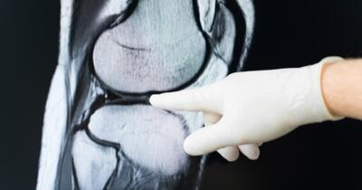 Cum sa vindeci durerea articula?iilor degetelor