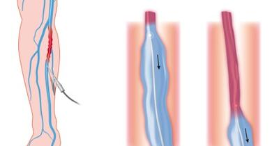 endovascular laser treatment