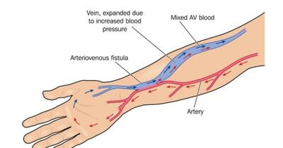 Arteriovenous (AV) Fistula Surgery - AV Fistula Surgery ...