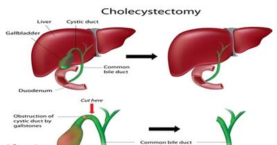 Cholecystectomy Conditions Treated Procedure Types