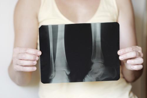 The Risks of Not Treating Rheumatoid Arthritis
