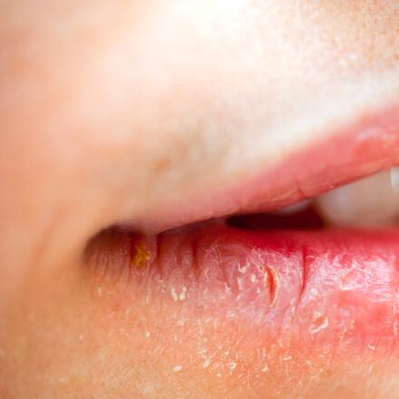 What is a Lip Sore? | Blister on Lip | Lip Bumps, Lesions