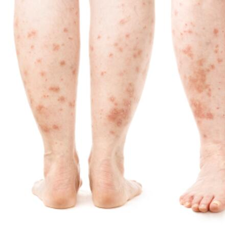 Leg Rash - Symptoms, Causes, Treatments | Healthgrades com