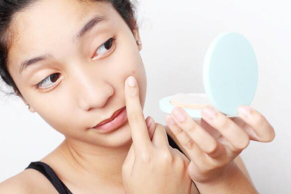 girl with acne, skin, pimple