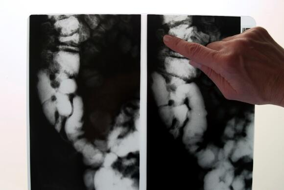 X-ray of Colon