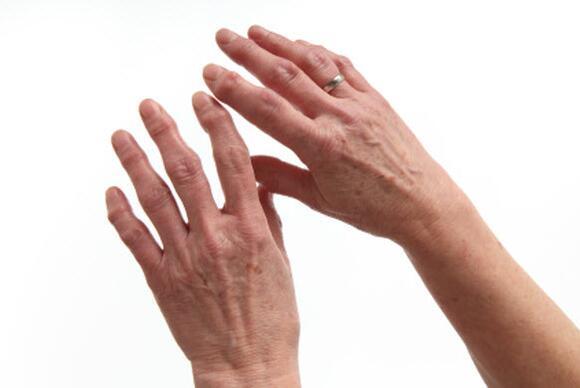 Ape Hand Deformity Splint 11196 Loadtve