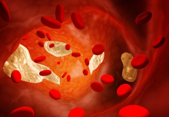 cholesterol, blood