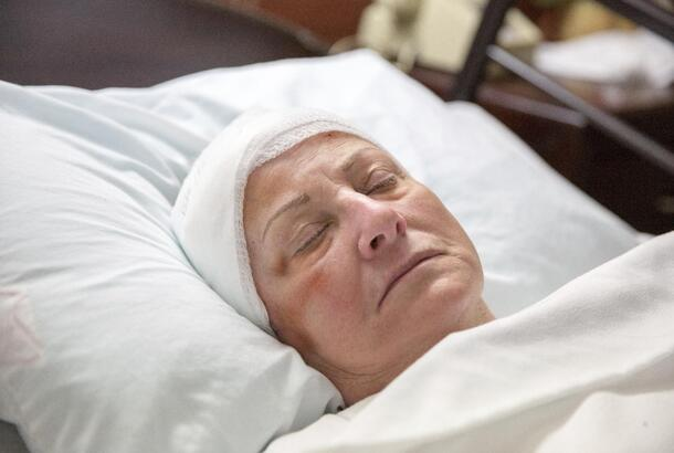 Patient sleeping with head bandage