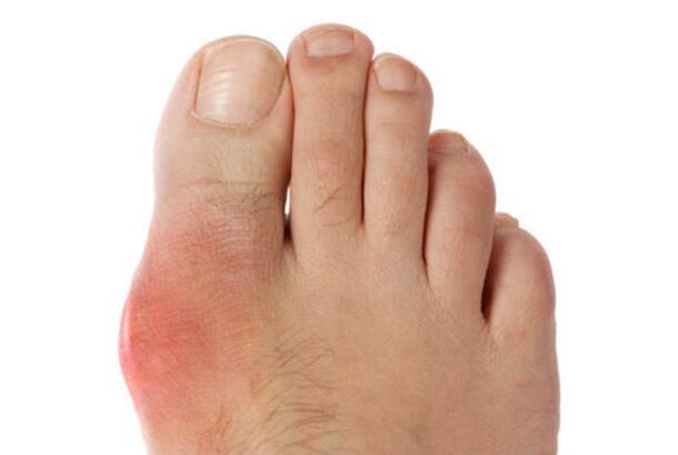 http://content.bettermedicine.com/fa/8820b0b9fb11e0b1c612313d033e31/file/gout-SS-big%20toe.jpg