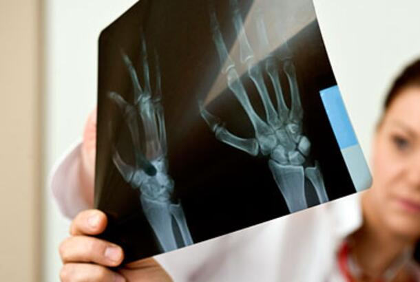 The Risk for Osteoporosis