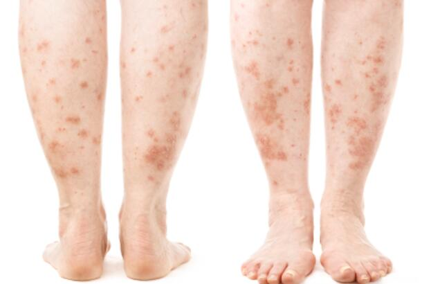 Leg Rash - Symptoms, Causes, Treatments | Healthgrades.com