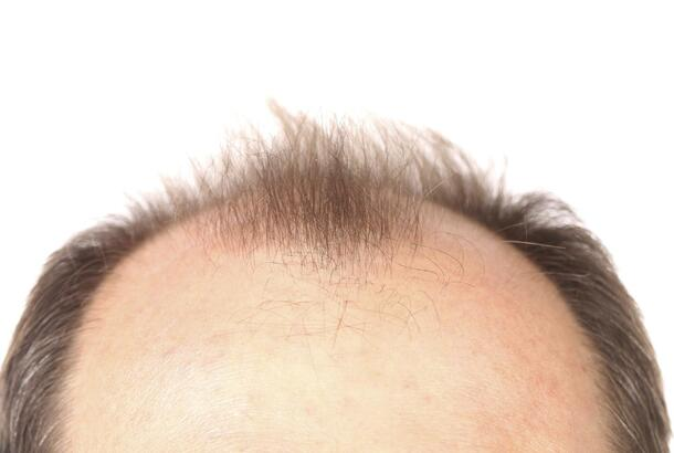 What are some causes of scalp tenderness?