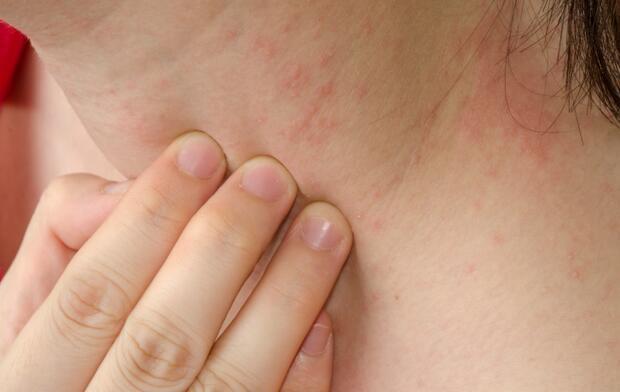 Eczema skin on neck