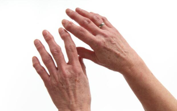 What Dupuytren's Contracture Does to the Hands