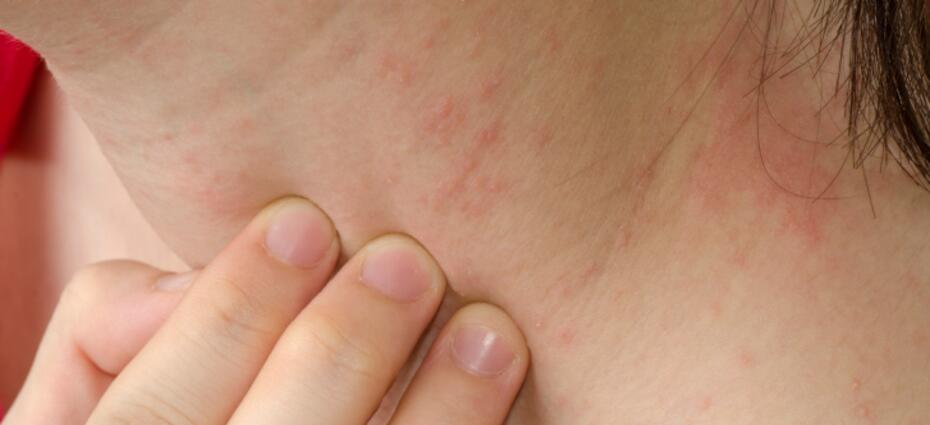 Neck Itch - Symptoms, Causes, Treatments | Healthgrades com