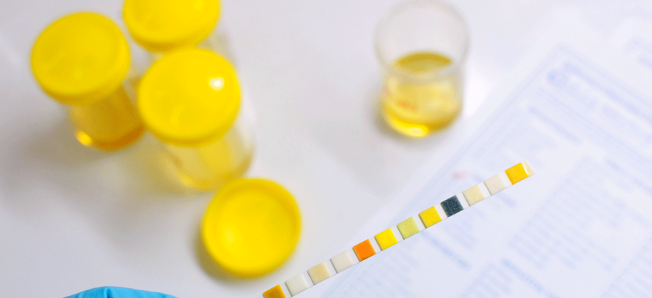 changes in urine