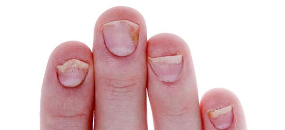 Nail Symptoms - Symptoms, Causes, Treatments | Healthgrades.com